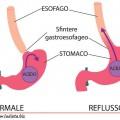 la malattia da reflusso gastroesofageo