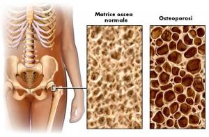 dieta contro l'osteoporosi