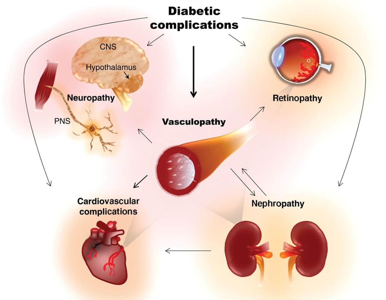 complicanze diabete mellito