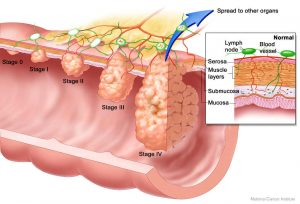 tumore del colon